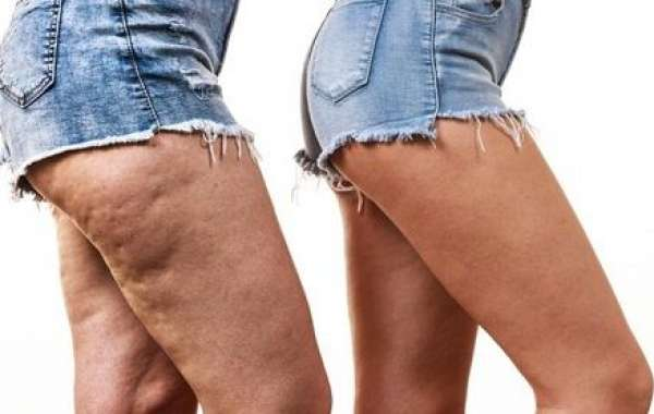 Reduce Cellulitis in the Lowers leg Fleetingly